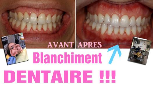 avis blanchiment dentaire