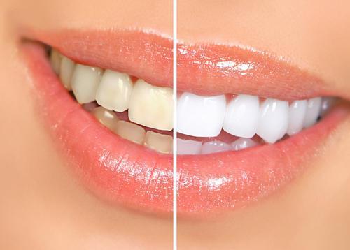 bicarbonate et dents