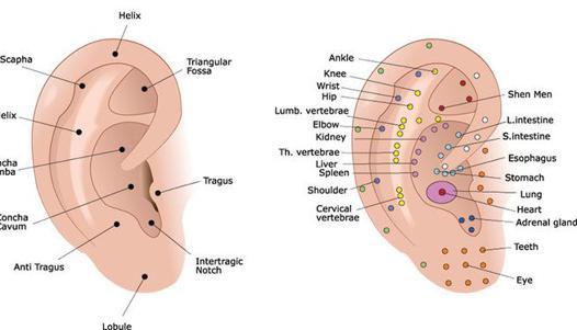 avis acupuncture