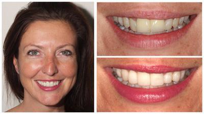 blanchiment dentaire avis